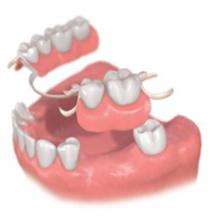 部分入れ歯 イラスト