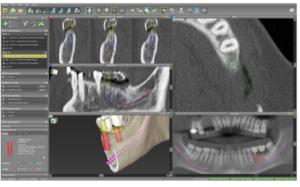 歯科用CTデータ