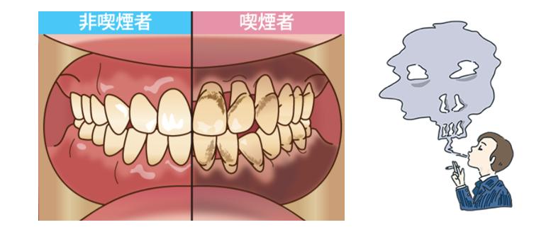 喫煙者の歯